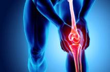 Meniskusriss: OP ja oder nein? Ratgeber zum Thema Knieschmerzen