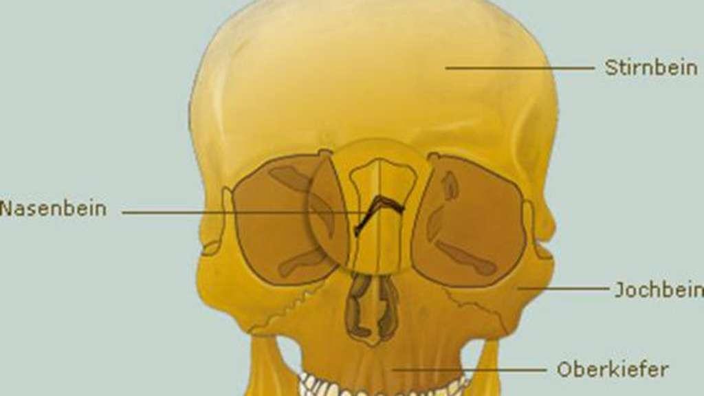 Sportverletzung: Der Nasenbeinbruch | Fitness, Sportmedizin ...