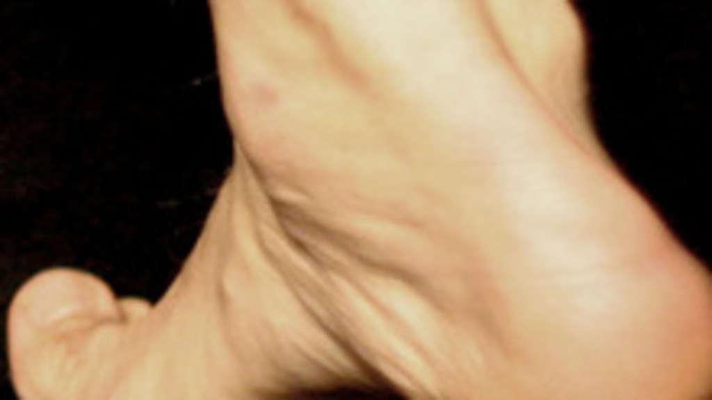Fußverletzungen und wie Sie diese vermeiden können ...