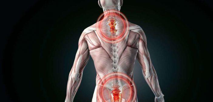Was hilft gegen Rückenschmerzen: mit diesen Übungen schmerzfrei werden