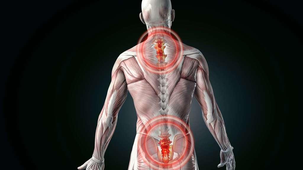 Bewegungstherapie und Training bei Rückenschmerzen: Ein Thema mit ...