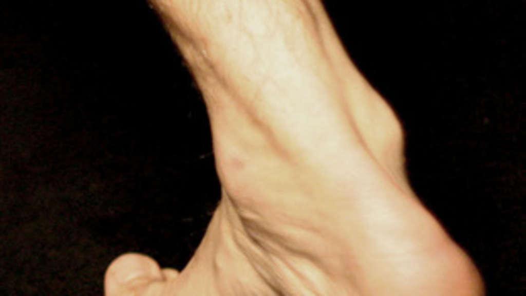 Sportverletzung: Achillodynie - Wenn die Achillessehne schmerzt ...
