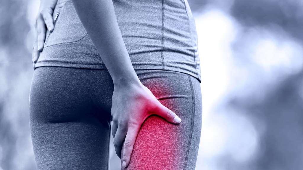 Starke Schmerzen in Gesäß, Beinen und Rücken: Das Piriformis-Syndrom