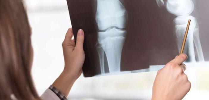 Läuferknie: Ursache, Symptome, Übungen, Behandlung, Vorbeugung