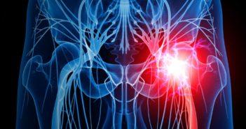 Piriformis-Syndrom und Ischias