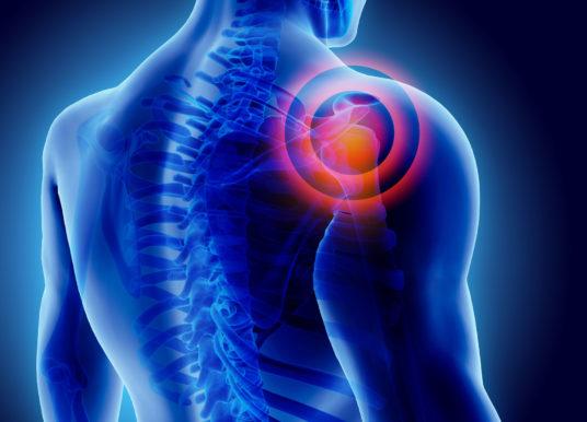 Schmerzen in der Schulter? Drei effektive Übungen gegen das Schulter-Impingement