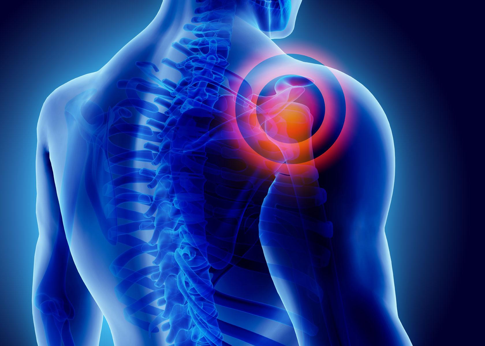 Schulterschmerzen beeinträchtigen die Lebensqualität