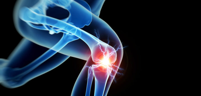 was hilft gegen Gelenkschmerzen