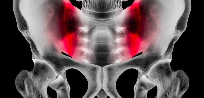 Iliosakralgelenk-Blockade, Rückenschmerzen, Piriformis-Syndrom