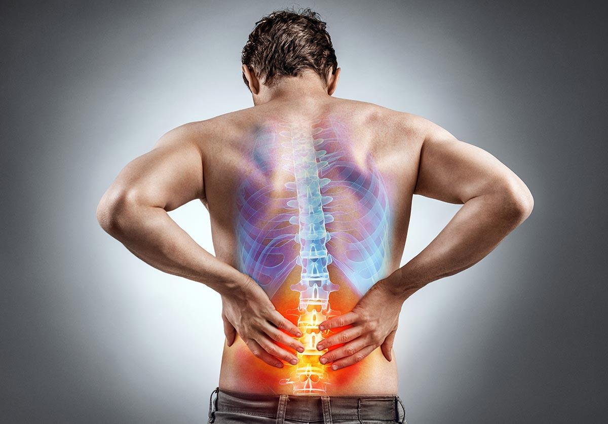 Wirbelsäulenprobleme: Drei Übungen für einen stabilen Rücken