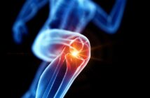 Knieprobleme - Die besten Übungen für ein gesundes Kniegelenk