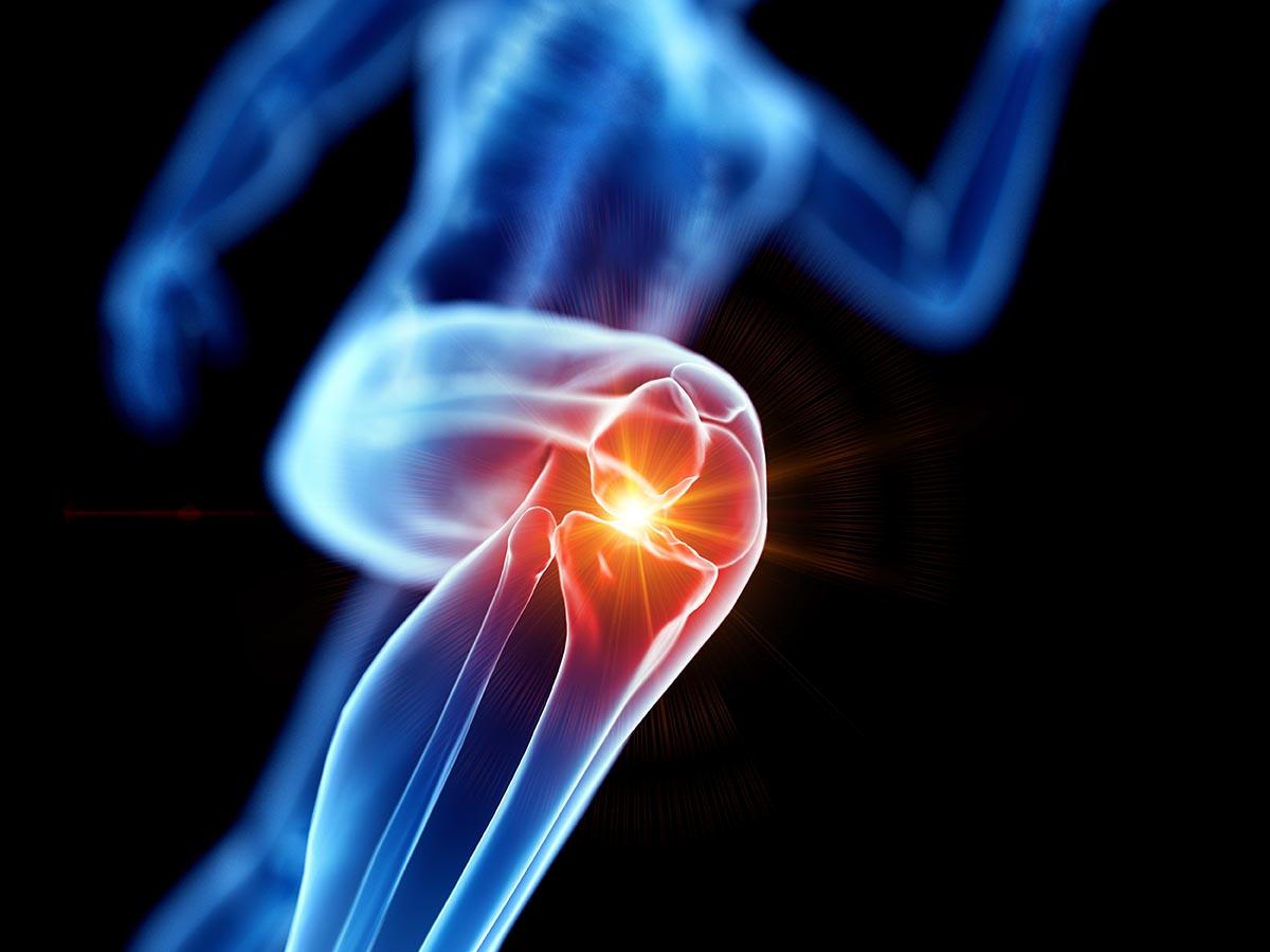 Knieprobleme – Die 4 besten Übungen für das Kniegelenk